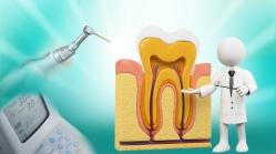 Tratamento de Canal - Sabre Odontologia Inteligente