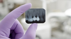 Radiologia Odontológica - Sabre Odontologia Inteligente