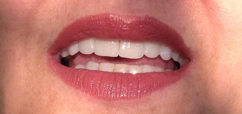 Resultado de tratamento com Proteses dentárias feito na clínica SABRE Odonto