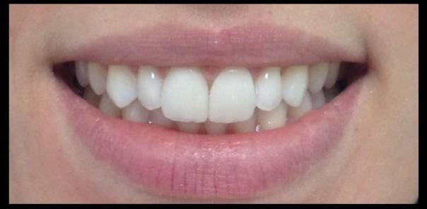 facetas para os dentes, porcelana, cerâmica